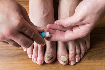 nail fungus care or nail fungus treatment. medical concept.