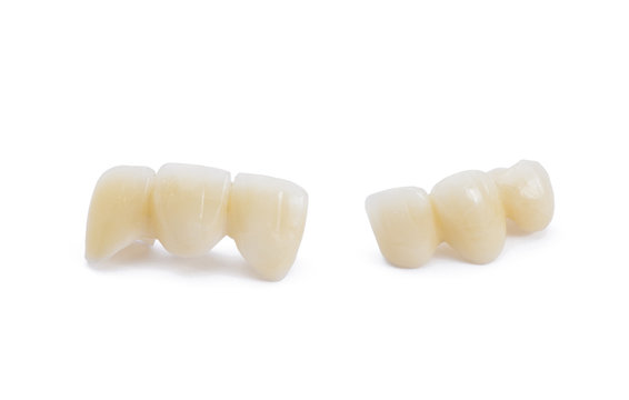 Ceramic dentures on white background