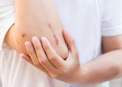 Man show lesion or wound on his arm after accident