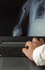 Doctor examining an X-ray image of a broken arm