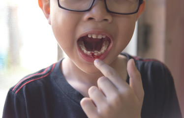 young asian boy loosing milk tooth