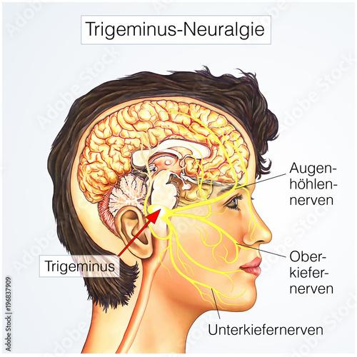 Trigeminusäste.Trigeminus-Neuralgie\