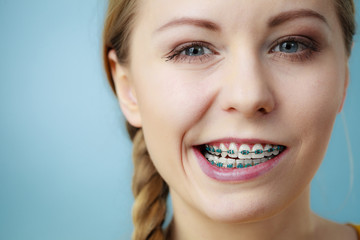 Closeup of woman teeth with braces, funny face