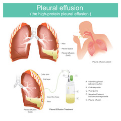 Pleural effusion the high-protein pleural effusion.