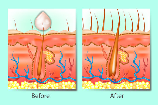 Hair growth stimulants before after. Hair on scalp before and after of treatment hair loss.