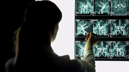 Neurosurgeon examining blood vessels x-ray, making diagnosis, patient treatment
