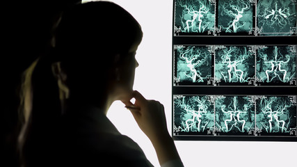 Thoughtful doctor looking at blood vessels x-ray, health care, neurosurgeon