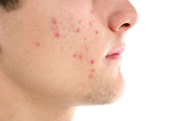 Young man with acne problem on white background