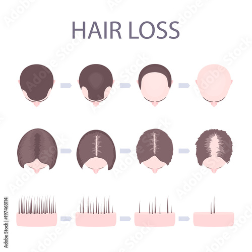 male and female pattern hair loss set stages of baldness in men and