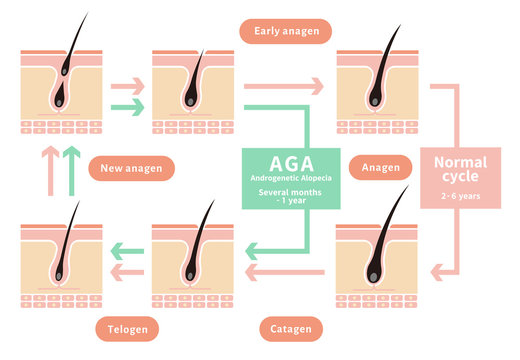 Comparative illustration of normal hair cycle and AGA ( androgenetic alopecia)/ english.