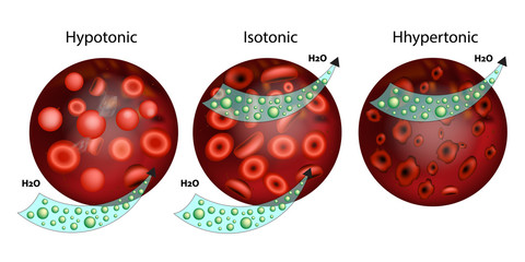 Effect of different solutions on blood cells.The effect of osmosis on cells. Hypotonic, Isotonic, and Hypertonic solution. Tonicity