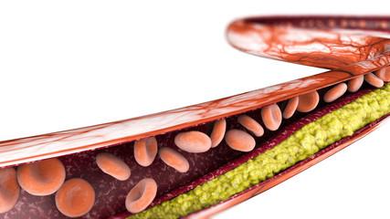 Formazione di colesterolo, grasso, arteria, globuli rossi