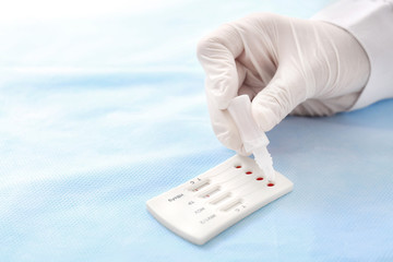 Doctor using test for HIV, Hepatitis B, C and Syphilis, closeup