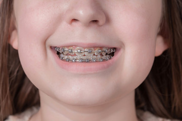 Broad smile girl with metal braces.