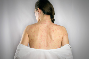 treatment chickenpox viral infection concept. girls back skin rashes