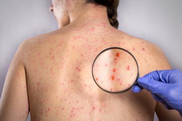 epidemic Rubella viral infection concept. skin bubble rash Wall mural