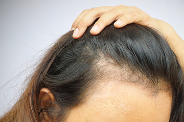 Close up woman hair on her forehead, hormone adult can make her hair fall down and she can bald.