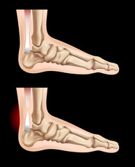 Human feet and injury in tendon