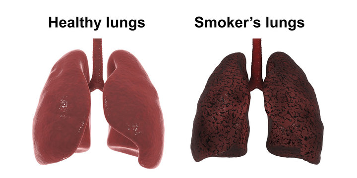 Healthy and smoker's lungs isolated on white background, medical concept,