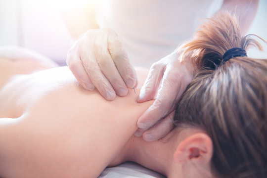 Physiotherapist doing acupuncture to a young woman on her back