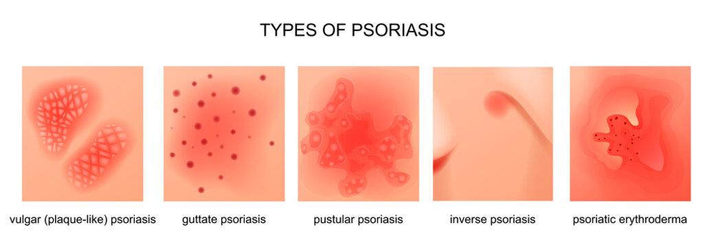 types of psoriasis