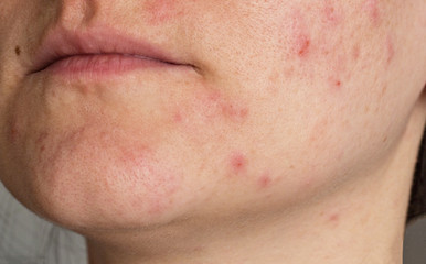 Acne on the face of a girl, close-up