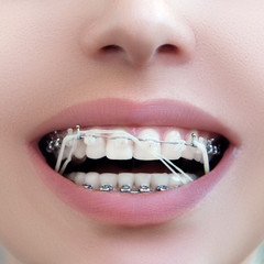 Closeup Dental Brackets with Rubber Elastic Band. Open Female Mouth with Self-ligating Braces. Orthodontic Treatment.