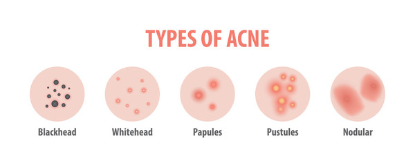 Types of acne diagram illustration vector on white background, Beauty concept.