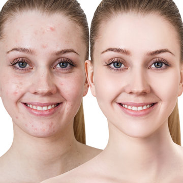 Young woman with acne before and after treatment.