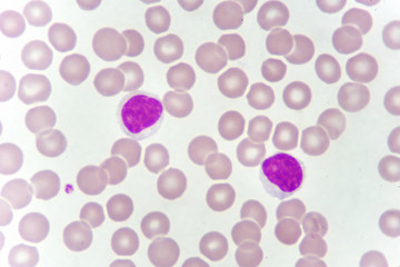 Lymphocyte cells (white blood cell) in blood smear, analyze by microscope
