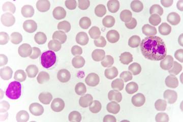 Blood smear of chronic lymphocytic leukemia (CLL), analyze by microscope