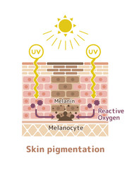 mechanism of skin pigmentation / skin spot illustration