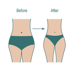Fat and slim woman figure, weight weight loss after fitness classes.
