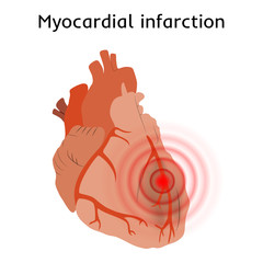 Myocardial infarction. Heart attack, pain. Damaged heart muscle. Anatomy flat illustration. Red image, white background.