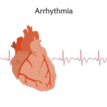Human heart. Arrhythmia. Anatomy flat illustration. Red image, white background. Heartbeat, pulse.