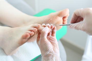 Klamra ortonyksyjna.  Chirurg zakłada klamrę na wrastający  paznokieć u stopy