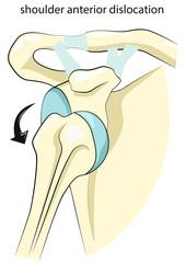 Shoulder anterior dislocation