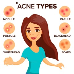 Acne Types Vector. Girl With Acne. Skin Care. Treatment, Healthy. Nodule, Whitehead. Isolated Flat Cartoon Character Illustration