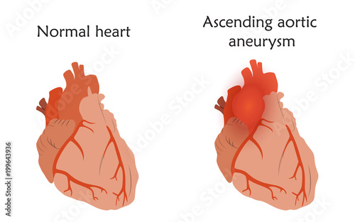 Ascending aortic aneurysm. Damaged and normal heart muscles. Anatomy ...