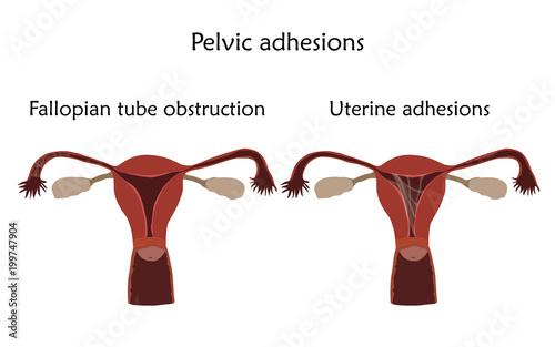 Pelvic adhersions. Uterine adhesions and fallopian tube obstruction ...