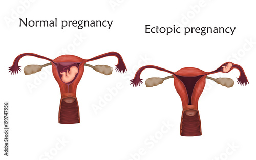 Ectopic and normal pregnancy. The fetus, uterus, womb. Anatomy flat ...