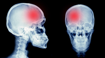 hemorrhage stroke