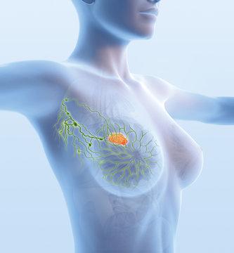 Breast cancer, lymphatics, mastocarcinoma, sentinel lymph node, medical illustration