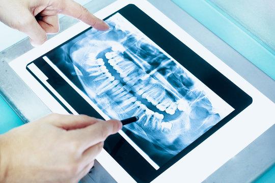 Dentist examining dental x-ray in his clinic lab