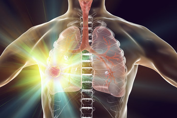 Lung cancer treatment and prevention concept, 3D illustration