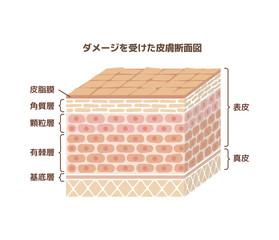 ダメージを受けた人体皮膚(肌荒れ)の断面図イラスト (文字あり)