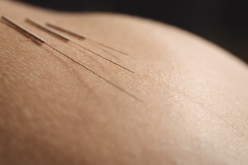 Close-up of needles for dry needling on skin