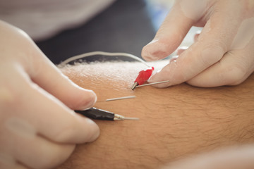 Physiotherapist performing electro dry needling on the knee of a patient