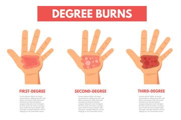 Degree burns of skin. Infographic Vector illustration.