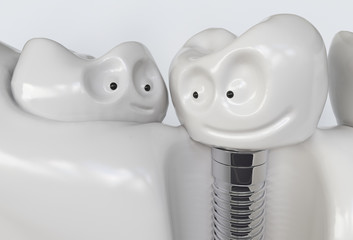 Tooth human cartoon implant - 3D Rendering